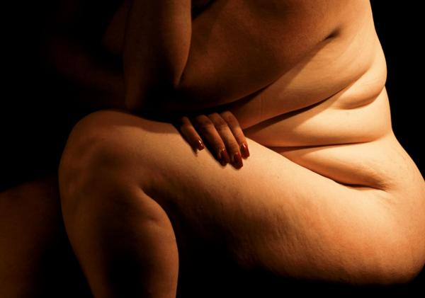 Image from Karen Hitchcock's The Monthly article on obesity. Karen Kasmauski / National Geographic Stock